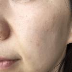 「肌の老化」は何が原因で起こるの?「肌荒れ」と関係あるの?
