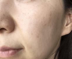肌の老化が目立つ女性の画像